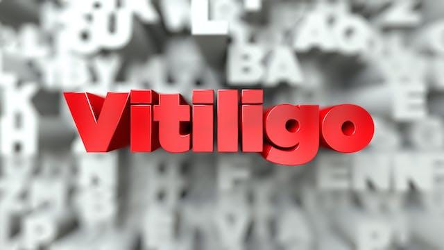 Vitiligo Epi-control
