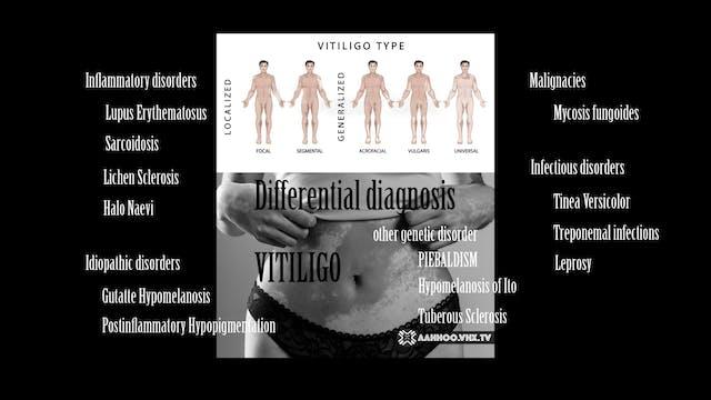 Differential Diagnosis Piebaldism