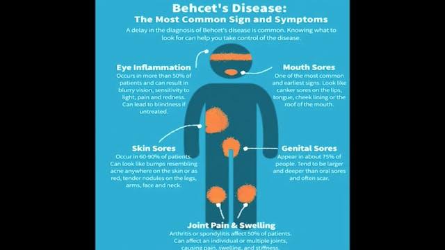 Sindrome de Behcet
