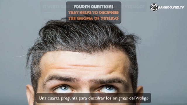 ENIGMAS OF VITILIGO Fourth question
