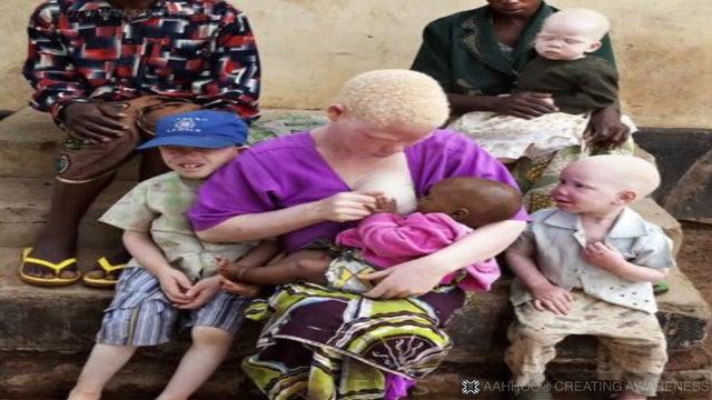 Albinos en Tanzania