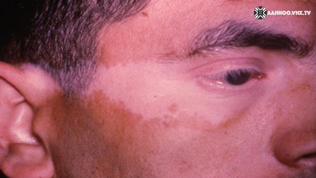 ENIGMAS OF VITILIGO Third question
