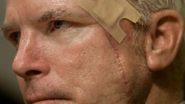 What They're HIDING About John McCain's Brain Surgery