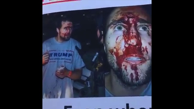 Trump Supporter Bloodied By SJW