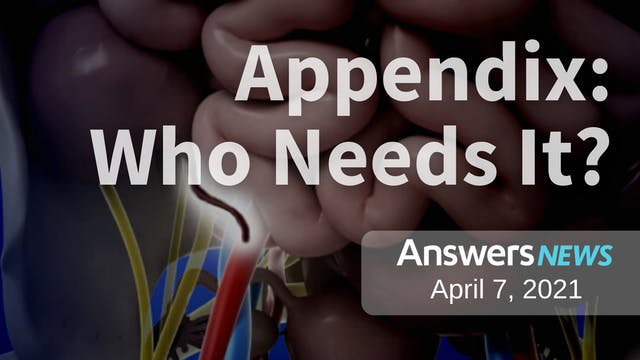 4/07 Appendix: Who Needs It?