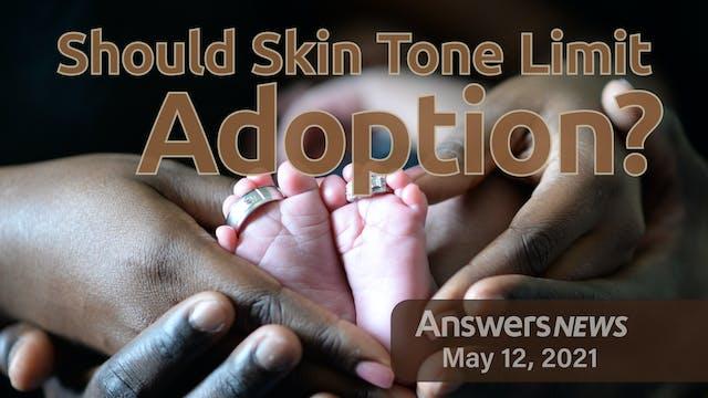 5/12 Should Skin Tone Limit Adoption?