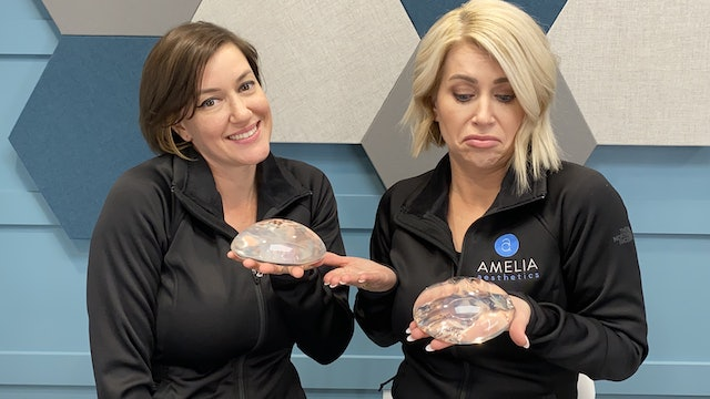 Breast Implant Exchange: Is It a Big Deal?