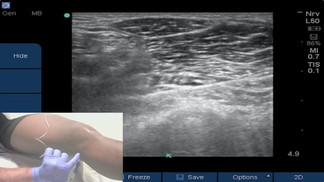 Ultrasound-Guided iPACK Block