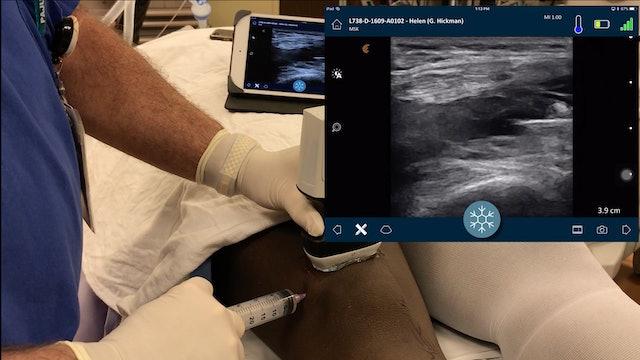 Musculoskeletal (MSK) Ultrasound