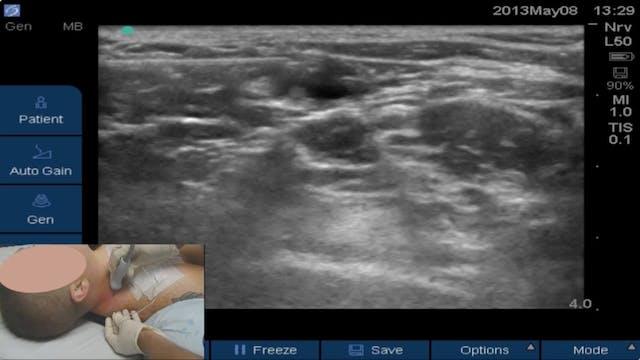 US-Guided Superficial Cervical Plexus...