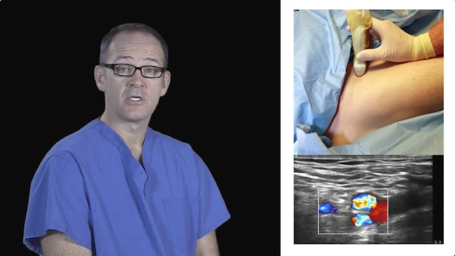 How to Perform an Ultrasound-Guided Femoral Nerve Block