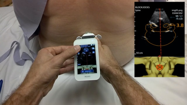 Accuro-Assisted Spinal Using Google Glass
