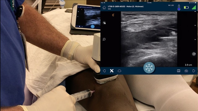 Intraarticular Block with Wireless Ultrasound