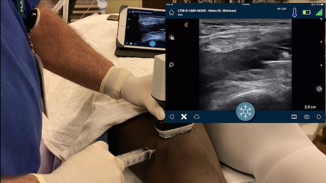 Intraarticular Block with Wireless Ul...