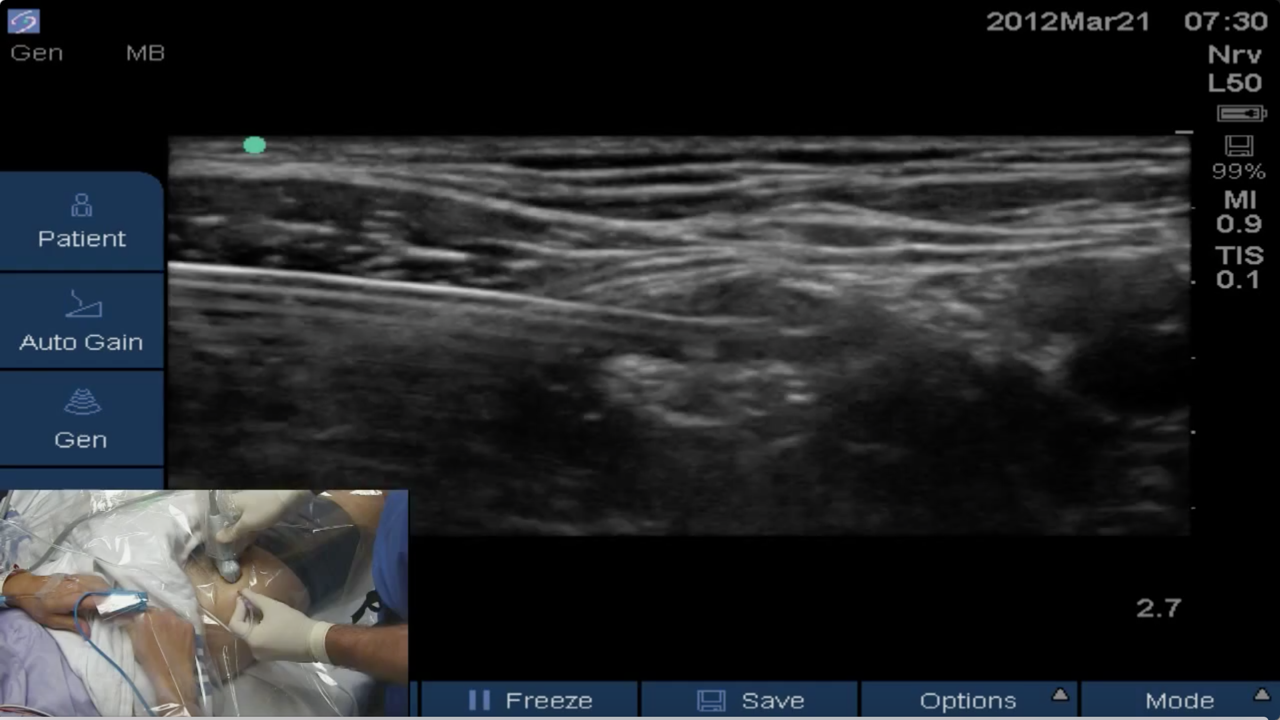 how to perform an ultrasound-guided femoral nerve block - femoral, Muscles
