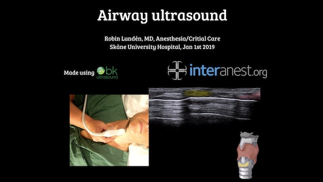 *NEW* Airway Ultrasound