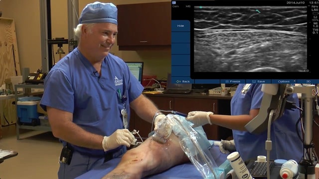 VIP Cadaver Demo- Assessing the Spread of Injectate in the Adductor Canal