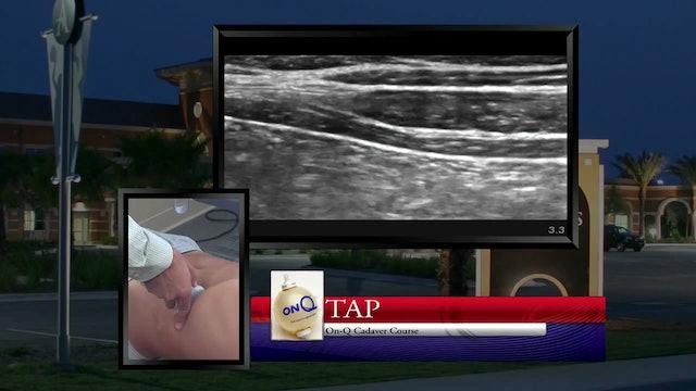 Transversus Abdominis Plane (TAP) Scanning Demonstration
