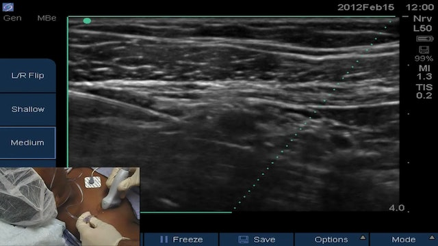 Infraclavicular with Sonosite Needle Visualization Software