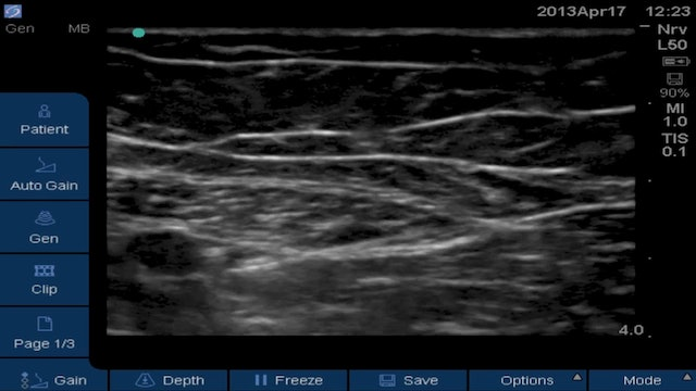Attempted Obturator Block in Adductor Canal