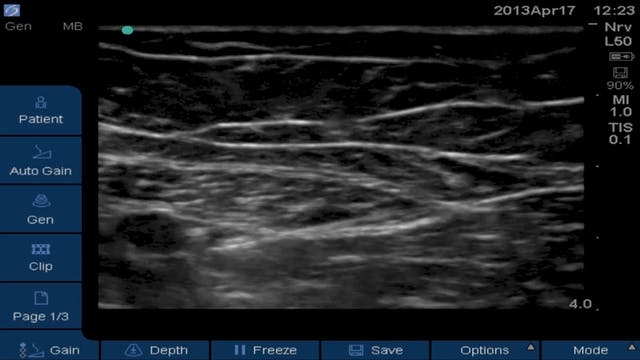 Attempted Obturator Block in Adductor...