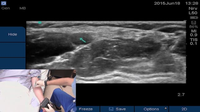 Ultrasound-guided Peripheral IV Place...