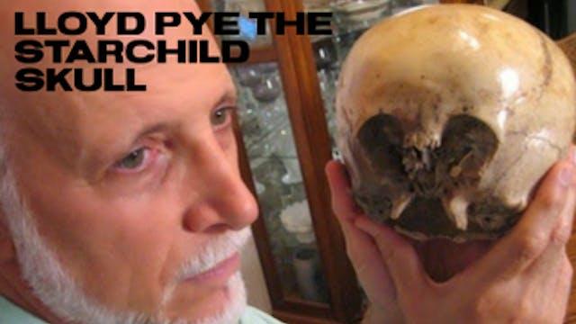 Lloyd Pye: Starchild Skull