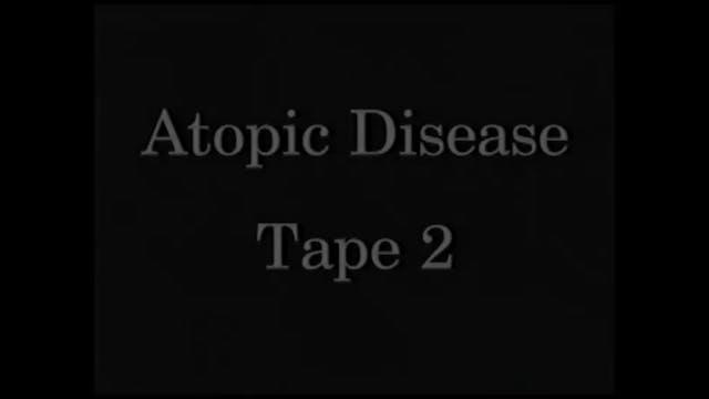 AtopicDiseases_Tape 2