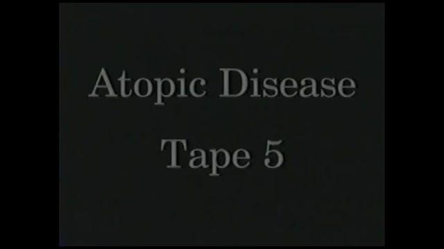 AtopicDiseases_Tape 5