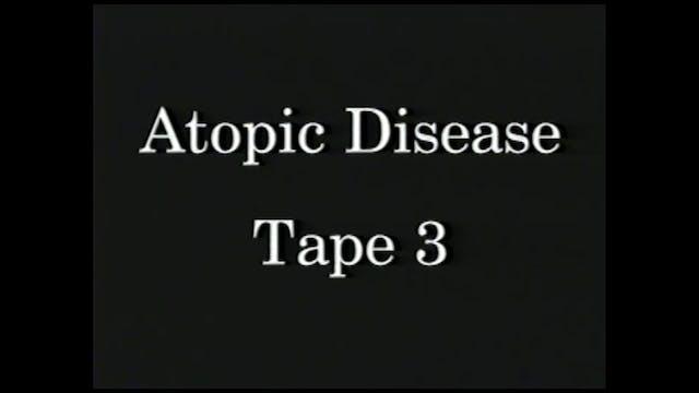 AtopicDiseases_Tape 3