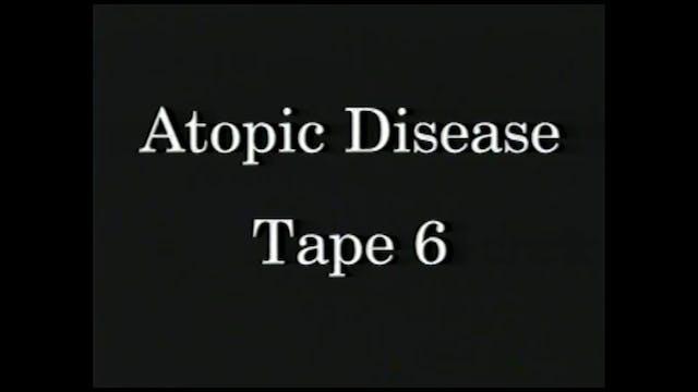 AtopicDiseases_Tape 6