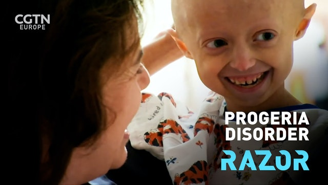 Progeria disorder #RAZOR