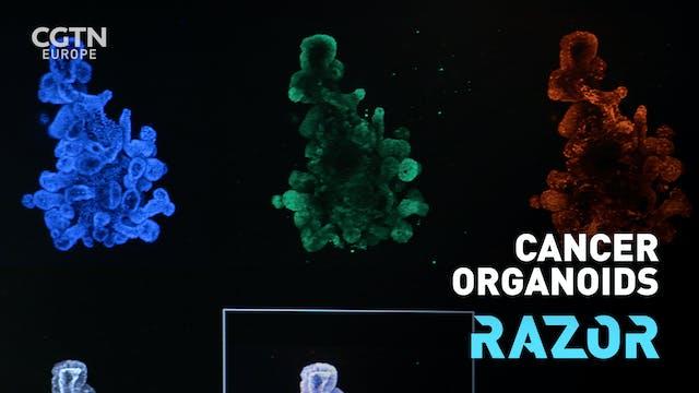 Cancer organoids #RAZOR