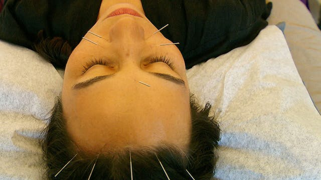 Popularity of acupuncture in US