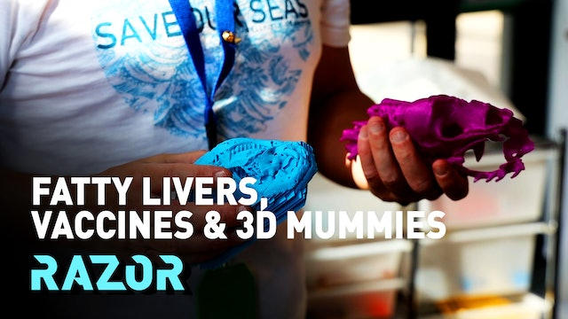 #RAZOR - FATTY LIVERS, VACCINES & 3D MUMMIES