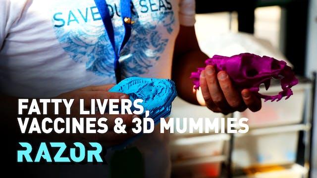 #RAZOR - FATTY LIVERS, VACCINES & 3D ...