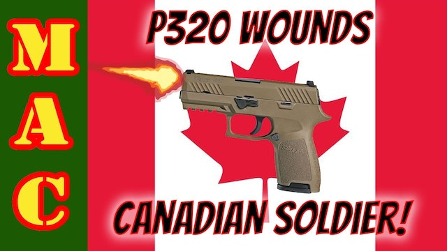 Sig P320 Discharge Wounds Canadian JTF-2 Operator!