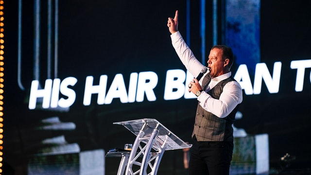 """His Hair Began to Grow"" 