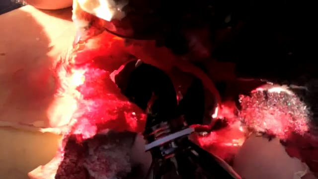 Werebear - Anatomy of a Head Explosion