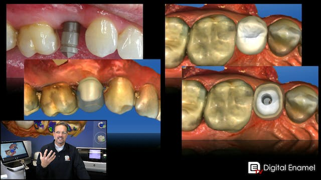 Split to Abutment and Crown Case