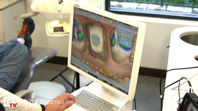 CEREC Zirconia Crown Walk Through