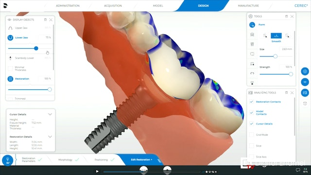 CEREC Implants The Design Phase