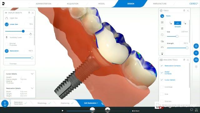 CEREC Implants The Design Phase