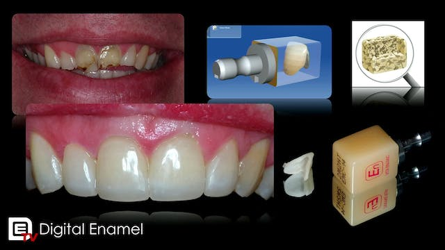 Hybrid Ceramic in CEREC