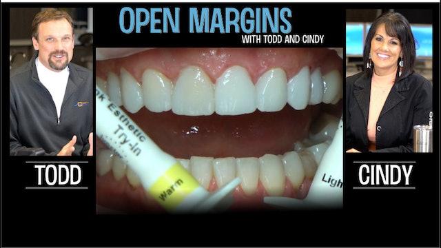 Open Margins Variolink Esthetic