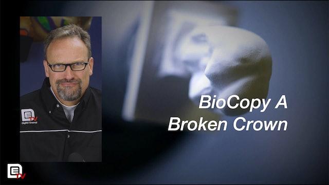 BioCopy a Broken Crown