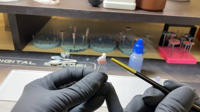 Glazing Implant Abutments