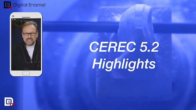 CEREC 5.2 Update