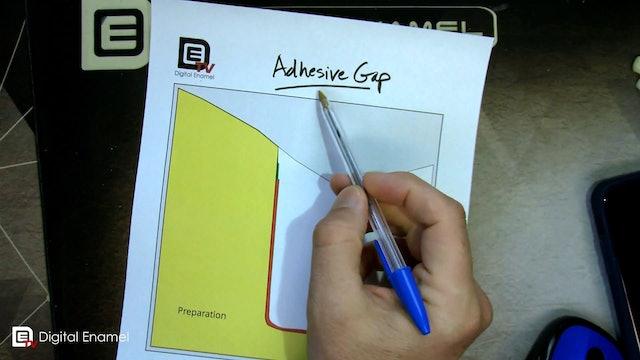 Adhesive Gap Parameter