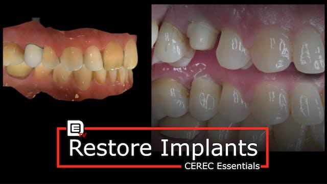 Restore Implants